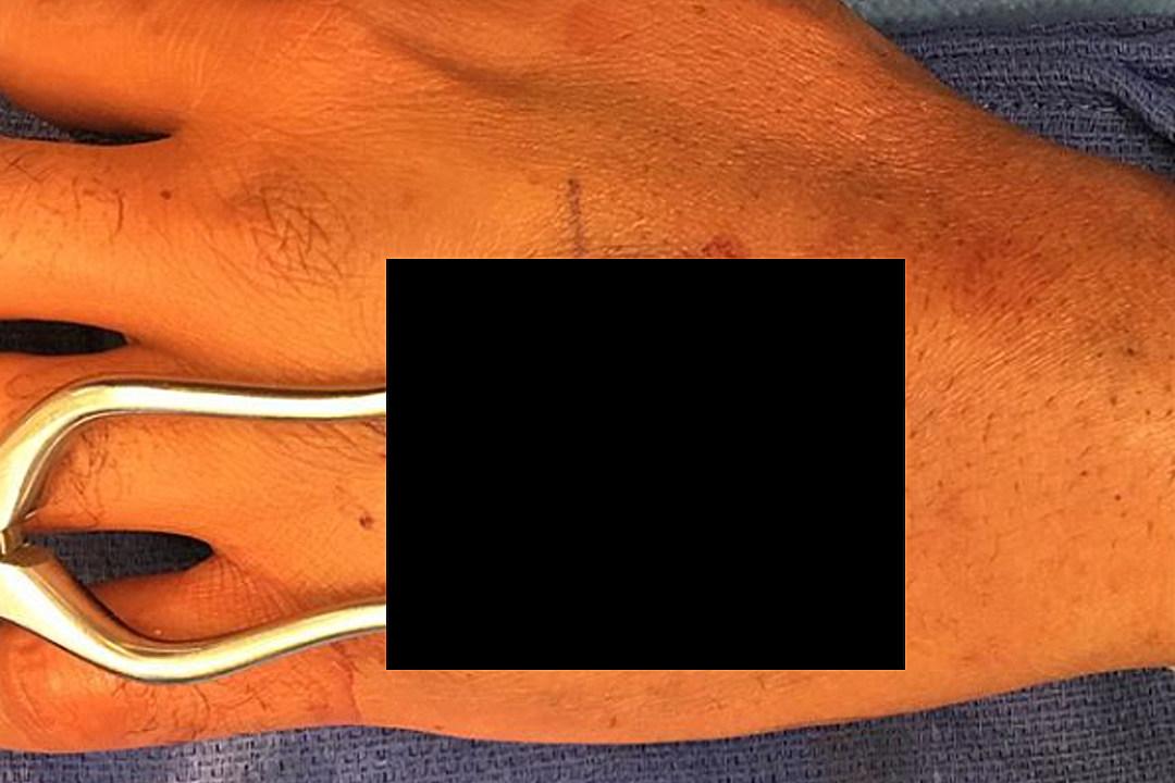 Emergency Hand Surgery Won't Stop Tom Morello